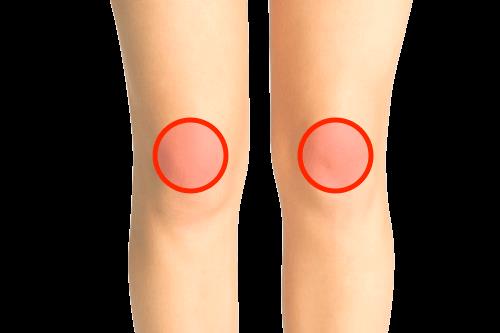 膝のお皿部分