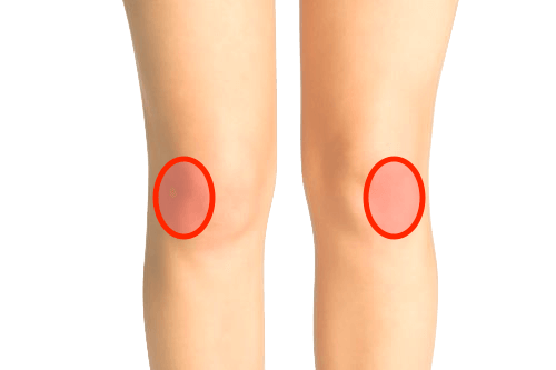 膝の外側の痛み