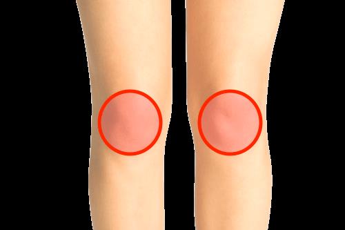 膝全体の痛み